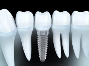3d rendering of how a dental implant is anchored into the gum/bone