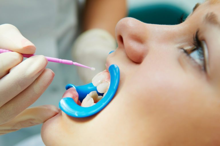 Close up image of patient having a dental sealant administered to teeth by a their dentist