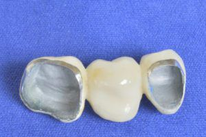 Casting of PFM restorations presented on a blue surface