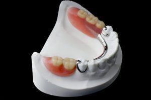 top view of posterior partial dentures presented on a black surface.