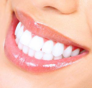 Close up image of a woman's smile, with white teeth