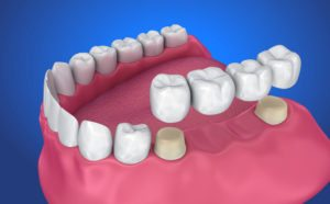 3d rendering of the lower jaw, with a dental bridge hovering above their fittings