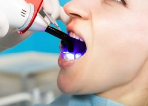 Dentist administering dental bonding procedure to a patient, using a bonding tool