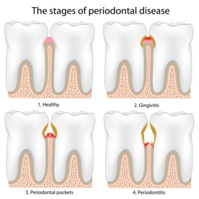 Illustrated Infographic showing 4 stages of Periodontal Disease